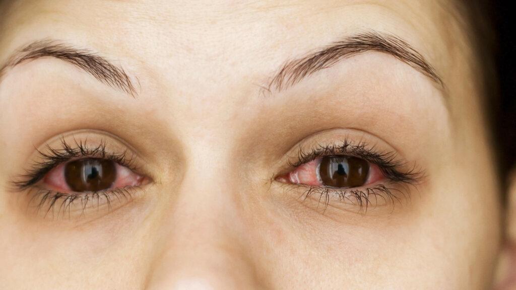 get rid of pink eyes