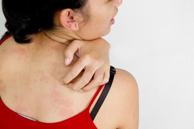 Get Rid of Skin Allergies