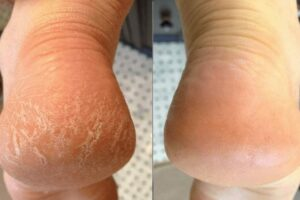 Get Rid Of Cracked Heels