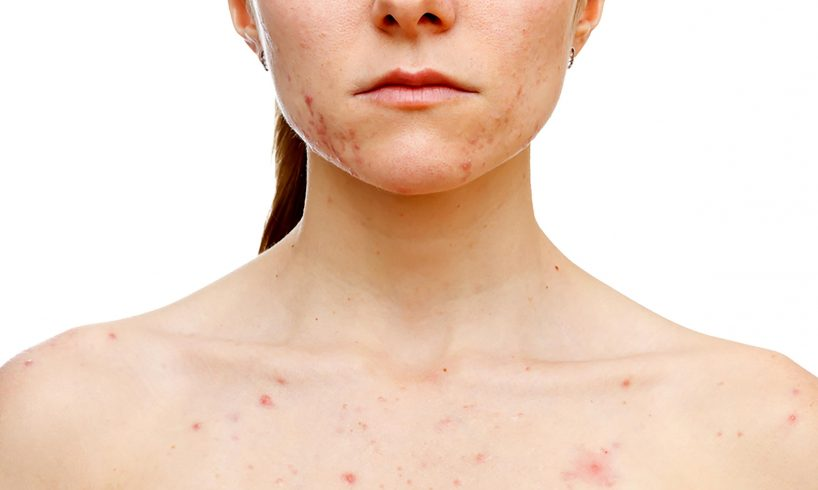 Position Of Acne On Your Body