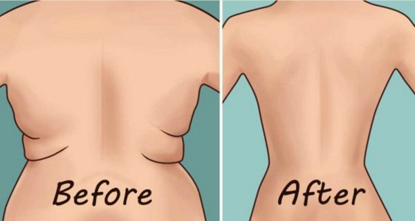Get Rid Of Side Folds