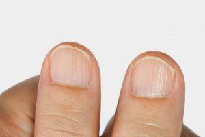 Lines On Fingernails