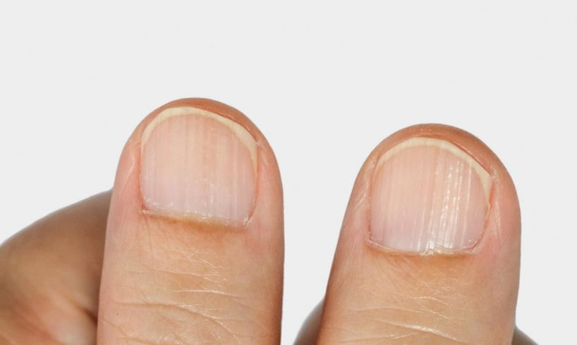 Lines On Fingernails