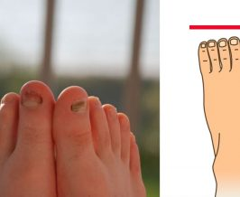 Shape Of Your Foot