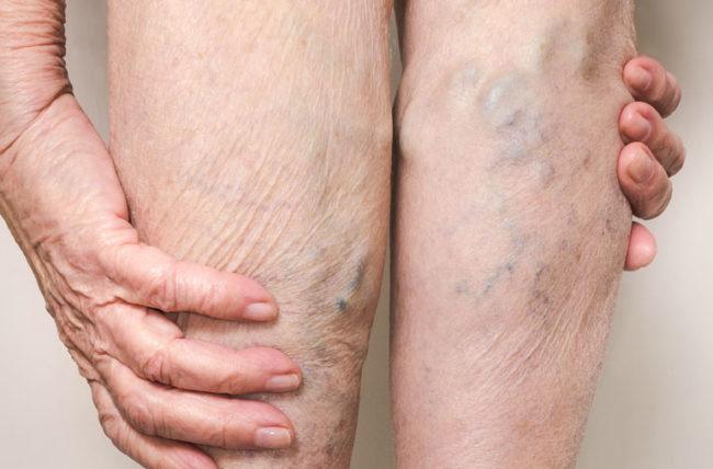 Visible Veins Through Skin